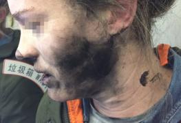 إحتراق مسافرة في طائرة جوية بسبب إنفجار السماعات الخاصة بها