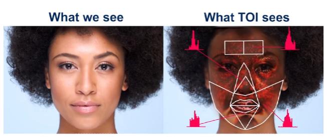 التصوير البصري عبر الجلد Transdermal Optical Imaging